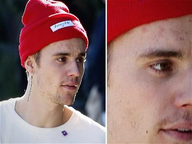 Justin Bieber Seemingly Gets Rid of 'Grace' Face Tattoo