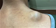 Dr. Pimple Popper — Watch Her Squeeze Out A 'Meatball' Growing On Someone's Back!