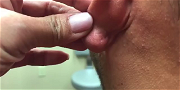Dr. Pimple Popper — Watch This Earlobe Cyst Explode And OOZE All Over The Doctor!