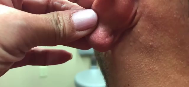 Dr. Pimple Popper — Watch This Giant Earlobe Cyst Open Up And Pour Like A Faucet!!