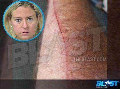 Michael Lohan Shows Off Lengthy Arm Slice After Kate Major Arrest