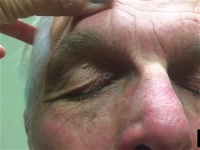 Dr. Pimple Popper — See This Blackhead Get Squeezed In The Scariest Location Ever!