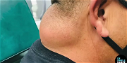 Dr. Pimple Popper — Watch This HUGE Neck Cyst Pulled Out Like A Baby Being Born!!