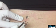 Dr. Pimple Popper — Check Out The BIGGEST Blackhead You Have Ever Seen!