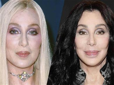 Cher's Stunning New Look, Plastic Surgeons Weigh In
