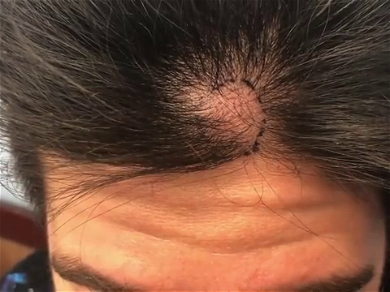 """Dr. Pimple Popper — This Looks Like A Whole """"Clove Of Garlic"""" Comes Out Of His Head"""