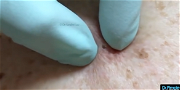 Dr. Pimple Popper — Blackheads Are Sometimes Bigger Than They Appear!