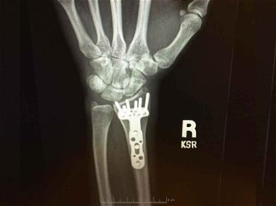 Carrie Underwood Reveals New Hardware in Wrist With Gnarly X-Ray