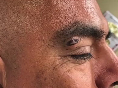 Dr. Pimple Popper — See The Monster 'Taco' Looking Cyst Blast Off For Cinco De Mayo!!