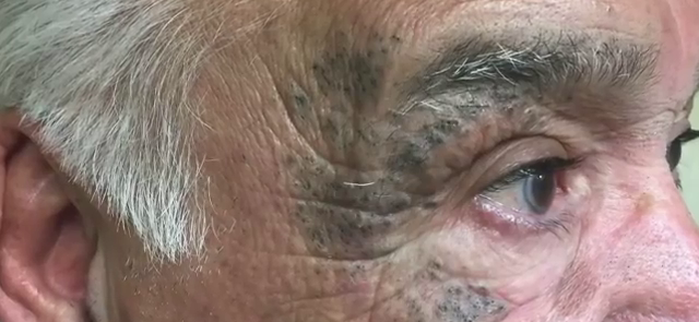Dr. Pimple Popper — See The Incredible Face FILLED With Blackheads Get Popped!