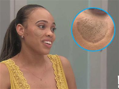 'Botched' Doctors Fix Dog Bite Victim's Unusual Skin Graft, 'Pubic Hair' Was Growing On Her Face