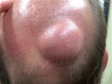 Dr. Pimple Popper — Watch This Giant Cyst Gush 'Peanut Butter' From Patient's Head!