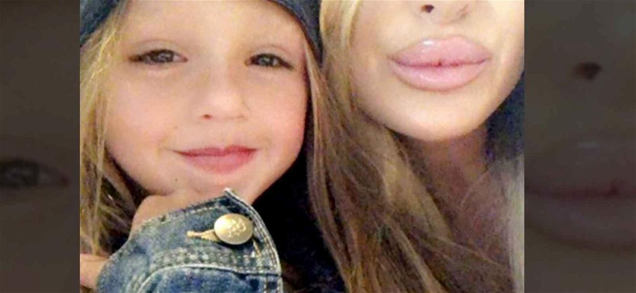 Kim Zolciak Dragged By Fans Over Gigantic Lip Fillers