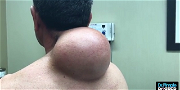 Dr. Pimple Popper — See This MASSIVE One-Pound Cyst Get Ripped Out!! It's Amazing!