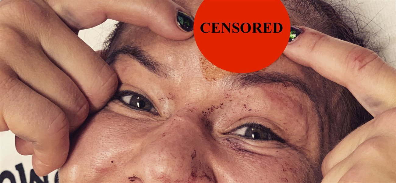 Cris Cyborg Releases NASTY Fight Cut Photo, Says She Could See Her Skull