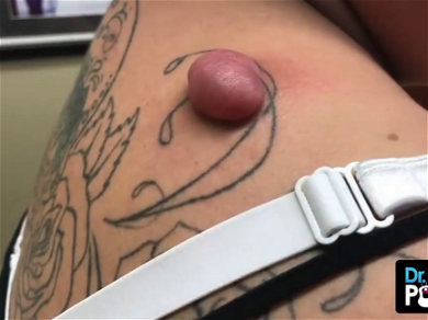 Dr. Pimple Popper — Breaks Out An Actual SPOON To Dig Out Massive Cyst!!