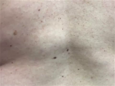 Dr. Pimple Popper —  Watch This HUGE Back Lipoma Get Squeezed Out!
