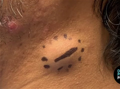 Dr. Pimple Popper — See The Giant 'BUG' Cyst Crawl Right Out Of The Skin!!